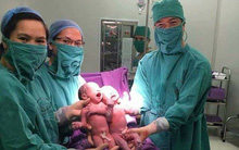 Hai bé trai được sinh cùng trứng từ thụ tinh nhân tạo tại BV Quảng Ninh