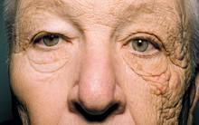 Người tài xế với hai nửa khuôn mặt khác biệt nhau, khi bác sĩ giải thích, ai cũng cảm thấy bất ngờ trước tác nhân đáng sợ này
