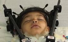 Bé gái bị tổn thương cột sống, tê liệt chỉ vì sai lầm của mẹ khi đặt con vào ghế ngồi ô tô