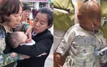 Bé sơ sinh rơi vào hôn mê sau khi bị bé gái 11 tuổi ném quả táo từ tầng 24 chung cư vào đầu