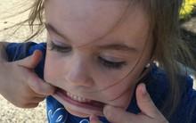 Chia sẻ chuyện con gái suýt chết vì nghẹt thở, bà mẹ nhắn nhủ các cha mẹ hãy học ngay kĩ thuật này