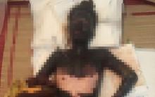 Tận cùng nỗi đau của cô gái trẻ bị người yêu tẩm xăng đốt khiến toàn thân cháy đen