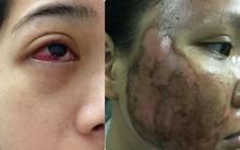 Cô gái bị tụ máu đỏ cả mắt do nhiễm trùng vì thói quen làm đẹp: Chị em hãy cẩn thận!