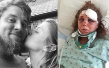 Sự thật phía sau tấm ảnh hạnh phúc của cặp đôi: Gã bạn trai thú tính kêu bạn hãm hiếp và đánh bạn gái mình sống dở chết dở