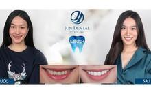 Sự thật ít người biết về mục đích ban đầu của răng sứ thẩm mỹ