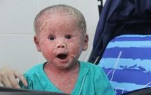Bé Bích 14 tháng tuổi bị bố mẹ bỏ rơi, người đầy vẩy ngứa như da trăn đã nhập viện Da Liễu TP.HCM để điều trị