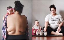 Bên cạnh một em bé xinh như thiên thần là cơ thể người mẹ với nhiều phần bị tàn phá sau sinh
