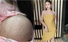 Sau sinh ba, bụng vẫn như bầu 5 tháng nhưng mẹ 9x đã lấy lại vòng eo thon gọn nhờ kiên trì làm 1 việc suốt 18/24h
