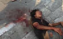 Đưa người đàn ông đập xe ô tô, đánh người ở Hà Nội vào bệnh viện tâm thần