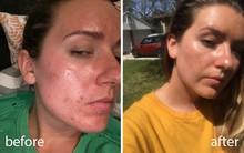 Rửa mặt với nước cất trong 1 tuần và làn da của cô nàng này đã thay đổi đáng kinh ngạc