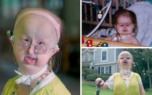 Mắc kẹt trong hình dáng của một đứa trẻ vì căn bệnh hiếm, cô gái 20 tuổi vẫn mơ ước tìm được tình yêu và trở thành một bác sĩ
