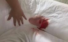 Mẹ kinh hoàng nhìn thấy chiếc nôi con trai đang nằm nhuốm đầy máu tươi và đưa ra lời cảnh báo về tai nạn không ai ngờ tới