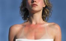 Sơ cứu khi bị cháy nắng, tránh biến chứng nguy hiểm cũng như mang lại tính thẩm mỹ cho làn da