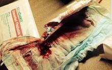 Bố mẹ có con trai lưu ý: Đưa con đi cắt bao quy đầu, bác sĩ cắt nhầm vào mạch máu khiến máu chảy không ngừng