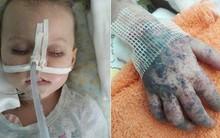 Không tiêm phòng sởi, bé 2 tuổi qua đời trước sự chứng kiến đau lòng của người mẹ