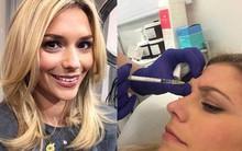 Lắng nghe những chia sẻ thật nhất của cô nàng 28 tuổi quyết định tiêm Botox để cải thiện làn da