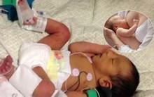 Cảnh báo: Các mẹ đang và sẽ nuôi con bằng sữa mẹ hết sức thận trọng với trường hợp này