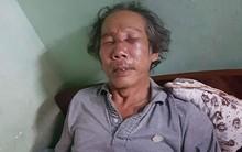 Bảo vệ chung cư Sài Gòn đánh ông già 68 tuổi rách mặt, gãy sống mũi vì đậu xe sai quy định