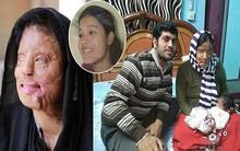 Từ chối lời cầu hôn của bạn trai, cô gái bị tạt axit đến biến dạng khuôn mặt, 14 năm sau