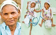 Đã có 2 con, 5 cháu, cụ bà 70 tuổi này vẫn có thể mang thai và sinh 1 cặp song sinh