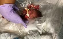 Chỉ bằng cái hộp bút khi mới chào đời, em bé này vẫn may mắn sống sót