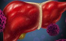 Những nhóm người dễ mắc ung thư gan hơn người khác: Hãy đề phòng!
