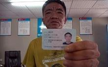 Người đàn ông 30 tuổi có khuôn mặt của ông cụ 80