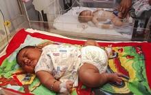 Em bé vừa mới sinh ra đã nặng gần 6kg