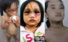 Đắng lòng những em bé bị chính người thân hành hạ tàn nhẫn
