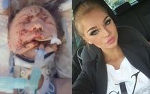 Sống sót sau tai nạn, cô gái phải