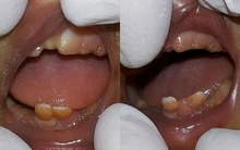 Hai em bé vừa chào đời đã... đầy một miệng răng