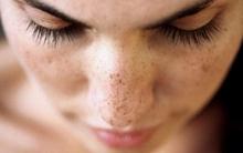 Nhận biết nguy cơ nhiễm độc kim loại qua những biểu hiện trên da