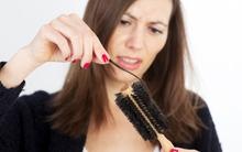 Đừng chủ quan với hiện tượng rụng tóc bởi nó có thể là triệu chứng của nhiều bệnh cực nguy hiểm
