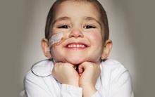 Ung thư não: Căn bệnh gây tử vong cao nhất ở trẻ em