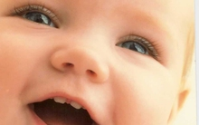 5 điều cha mẹ cần lưu ý về răng của bé