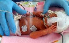 Kỳ diệu bé sơ sinh chỉ nhỏ bằng bàn tay mẹ vẫn sống sót