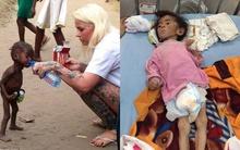 Không tin nổi giữa thế kỷ 21, còn nhiều em bé đau yếu, thậm chí chết vì đói như thế này...