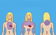 Nếu thấy 7 triệu chứng này, bạn có thể gặp cơn đau tim sau đó 1 tháng
