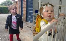 Cô bé đáng thương mới 2 tuổi những đã mắc 14 căn bệnh nghiêm trọng