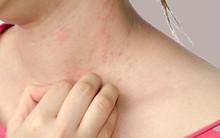 Cảnh báo 8 dấu hiệu ở da là triệu chứng của những bệnh cực nguy hiểm