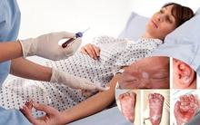 Tính mạng của thai nhi có thể bị đe dọa nếu mẹ mắc bệnh nguy hiểm này khi mang thai