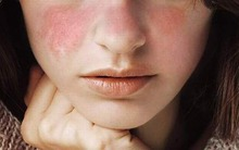 Lupus ban đỏ hệ thống: Bệnh nguy hiểm đến tính mạng nhưng lại khó phát hiện sớm