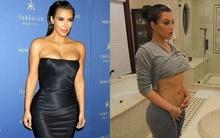 Căn bệnh về da mà cô đào Kim Kardashian phải đối mặt cả đời vì không có thuốc chữa đặc trị