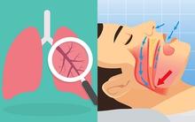 6 bệnh gần như không có triệu chứng rõ ràng ban đầu, khi phát hiện ra thì đã nặng