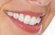 6 điều không thể bỏ qua khi niềng răng