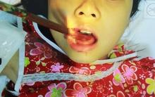 Hãi hùng bé gái 9 tuổi bị đũa đâm thủng lưỡi