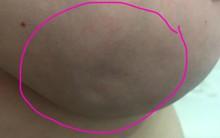 Phát hiện ngực có 3 vết lõm, người phụ nữ không ngờ đó là dấu hiệu của bệnh nan y