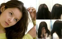 Thói quen bứt tóc: Hành động nhỏ nhưng tác hại khôn lường