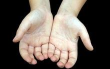 Màu sắc bàn tay tiết lộ gì về vận mệnh cuộc đời bạn?