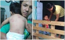 Bé gái 13 tháng tuổi bị bạn cắn chi chít vết thương, chủ trường gọi phụ huynh là